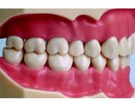 MODEL WITH 32 SCREW FIXED TEETH & GUM